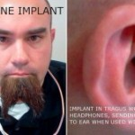 Surgically-Implanted-Headphones