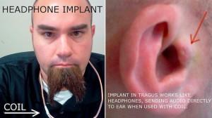 Surgically Implanted Headphones 300x168
